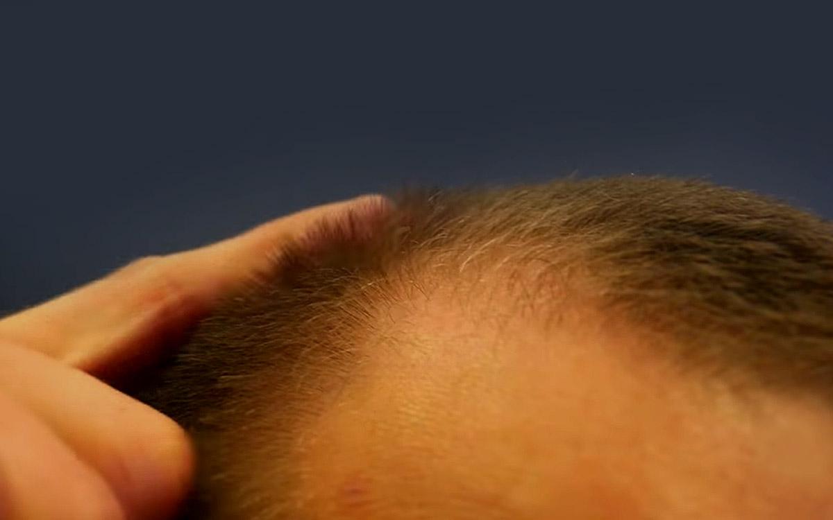 Современное лечение выпадения волос