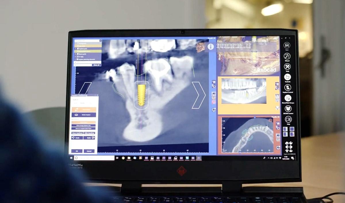 Цифровая стоматология - будущее и настоящее