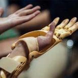 24-летней девушке установили активный протез, разработанный в Сколково [видео]