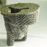 Первую в мире операцию с костной тканью, полученной на 3D-принтере, провели в Китае