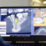 Цифровая стоматология — будущее, которое уже настоящее